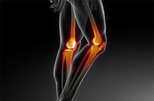 Проблемы с костями: как их предотвратить