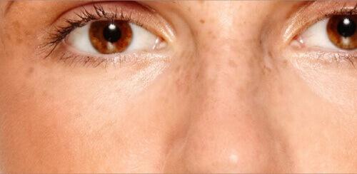 Как уменьшить пигментные пятна на лице и избавиться от них