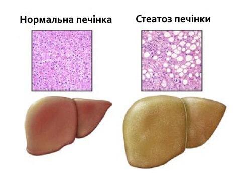 Как вылечить жировую инфильтрацию печени или стеатоз