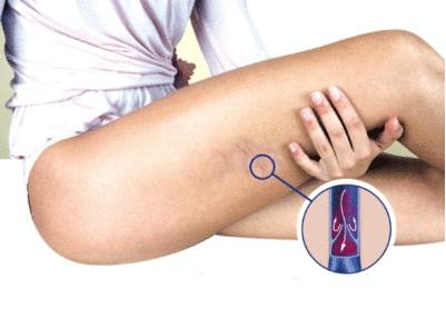 Упражнения для профилактики и лечения варикозного расширения вен