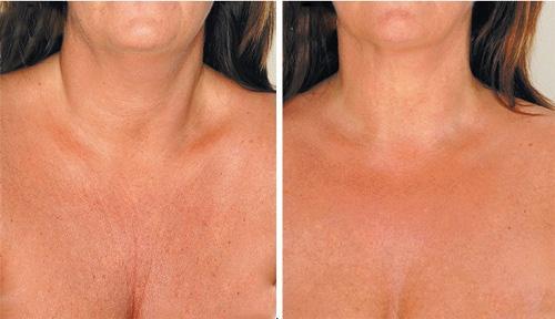 Средства для уменьшения морщин на шее