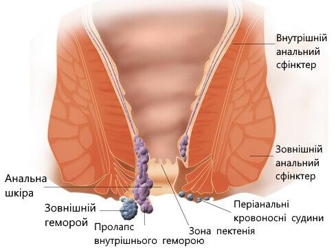 Ромашка - натуральное лечение геморроя