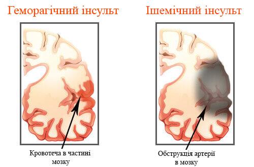 Способы профилактики инсультов