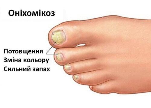 Грибок стоп ног как лечить в домашних условиях
