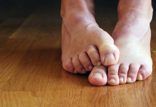 Онихомикоз: грибок ногтей