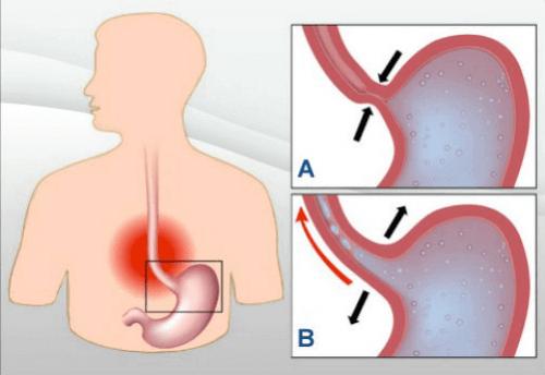 7 натуральных средств для лечения кислотного рефлюкса