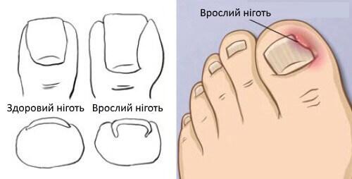 Вросший ноготь на ногах: лечение