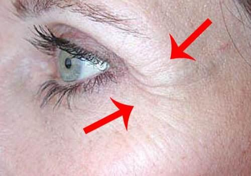 Причины и профилактика гусиных лапок под глазами