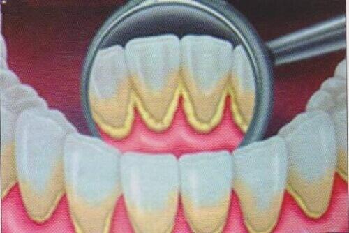 Как устранить зубной налет естественным способом