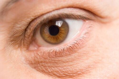Как осветлить и уменьшить мешки под глазами
