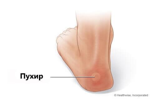 Как сделать кожу на ногах нежной и гладкой? - Мода 22
