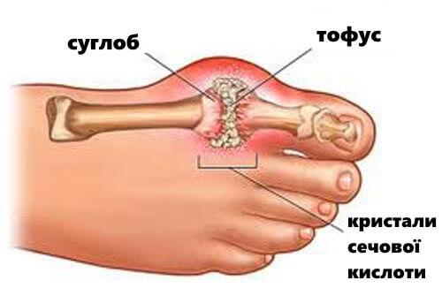 Подагра: симптомы и способы лечения