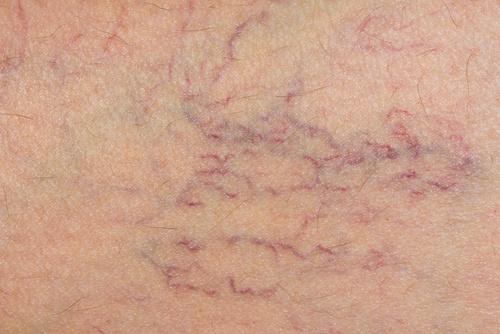 Натуральные методы лечения варикозного расширения вен