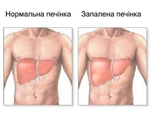 Воспаление печени. Причины и симптомы болезни