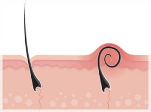 Лечение и профилактика вросших волос