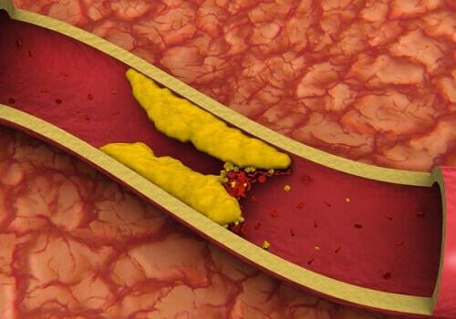Соки, снижающие уровень холестерина