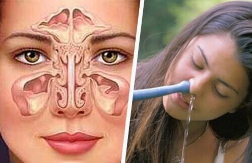 Простой и естественный способ лечения синусита