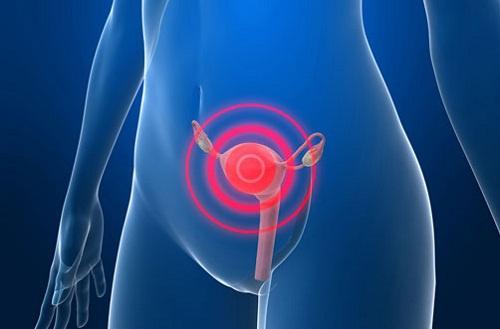 Предупреждающие симптомы рака шейки матки