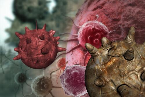 Симптомы рака яичников, которые не стоит игнорировать