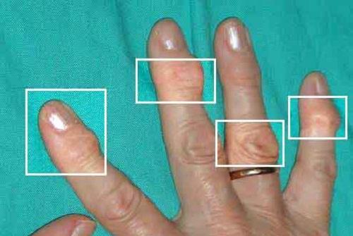 Натуральные средства лечения артрита