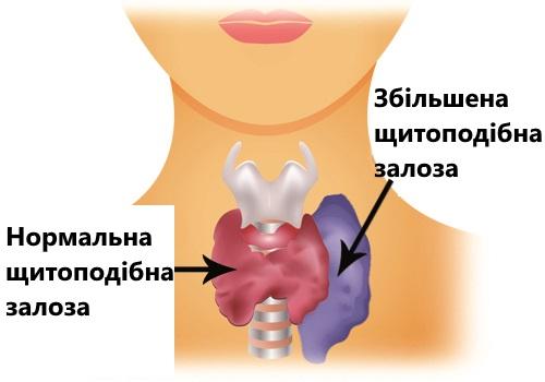 Продукты, которые регулируют работу щитовидной железы