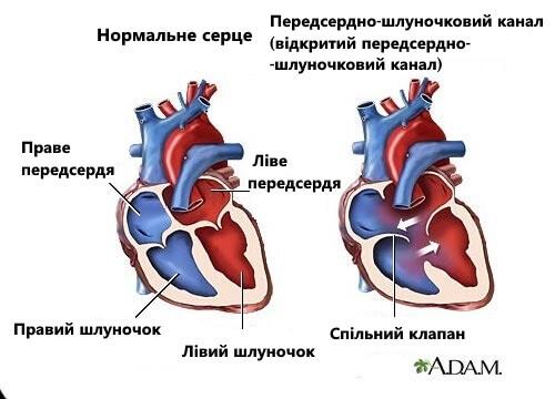 7 симптомов шумов сердца, о которых следует знать