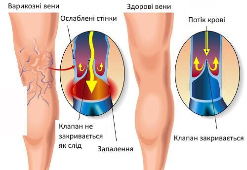 Полезные упражнения при варикозном расширении вен