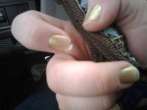 Почему расслаиваются ногти? Причины, средства лечения и решения проблемы