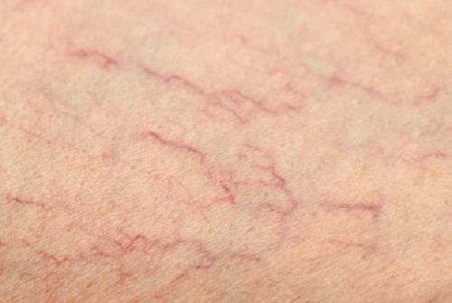 Варикозное расширение вен на ногах: способы лечения