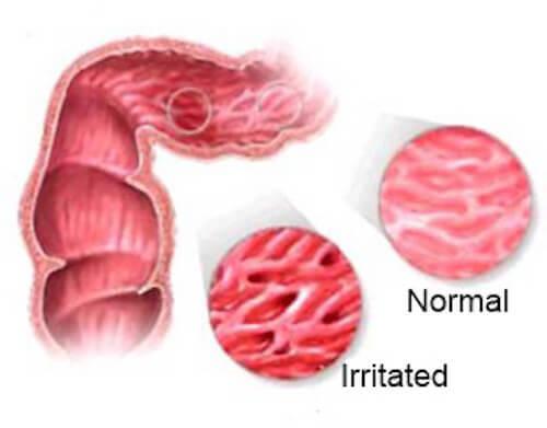 Внимание! Запрещенные продукты при синдроме раздраженного кишечника